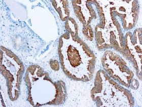 PSA (Prostate Specific Antigen), Clone 3H59, 10ml
