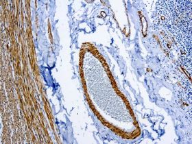 Smooth Muscle Myosin, Clone SMMS-1